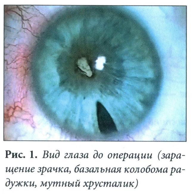 Вид глаза до операции (заращение зрачка, базальная колобома радужки, мутный хрусталик)