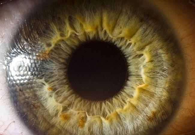 В здоровом организме регулирование диаметра зрачков происходит рефлекторно