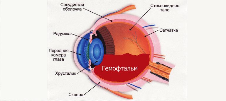 Гемофтальм глаза