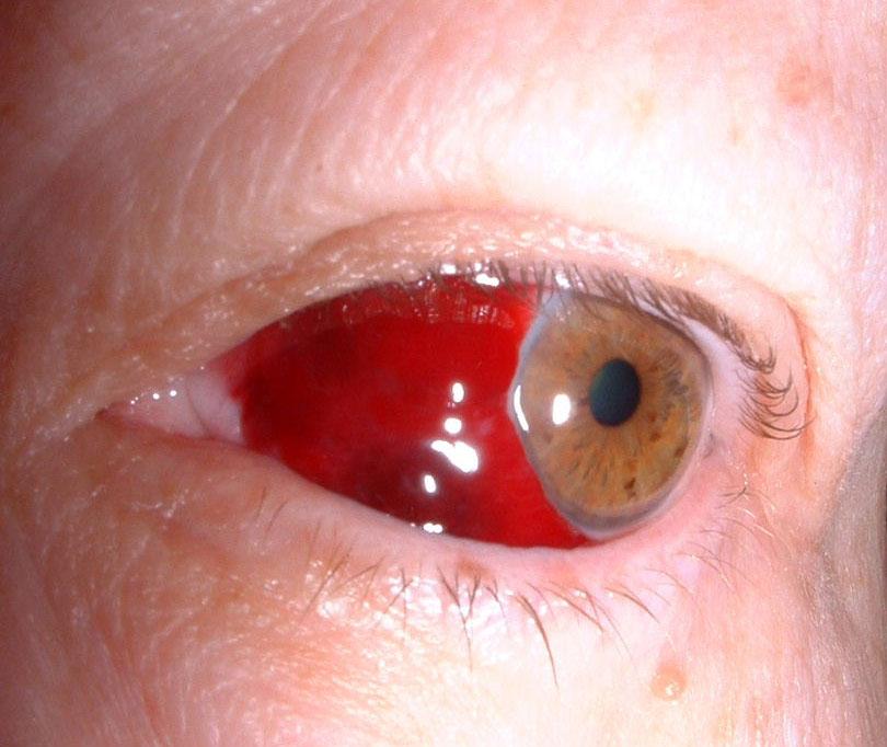 Гемофтальм - кровоизлияние в глаз