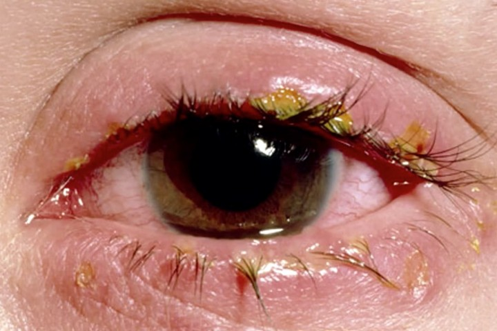 гноится глаз у взрослого лечение