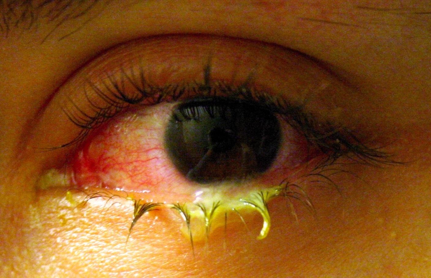 Гноятся глаза