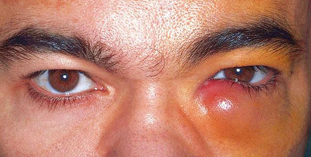 Воспаление слезного канала у взрослых