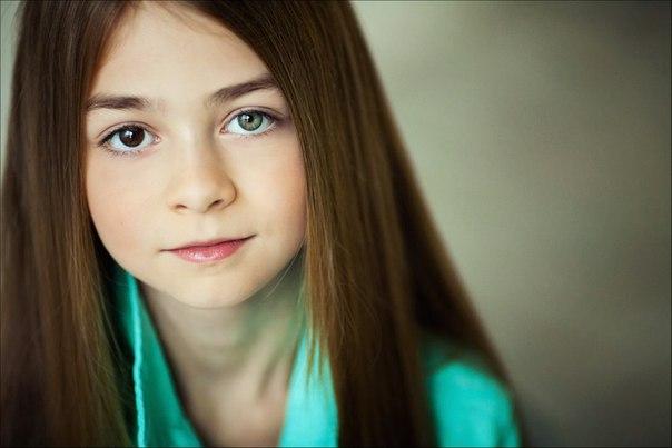 Девочка с разными глазами