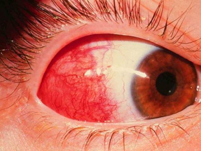 Есть много причин кровоизлияния в глаз