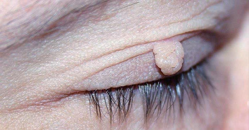 Есть несколько способов заражения вирусом папилломы