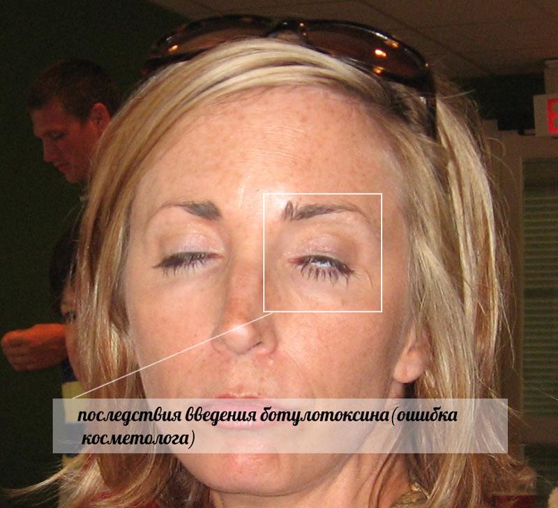 Еще один пример ошибки косметолога