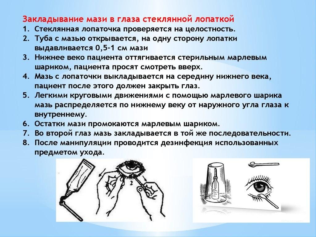 Закладывание мази в глаза стеклянной лопаткой
