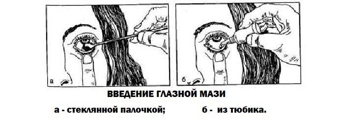Закладывание мази в глаз