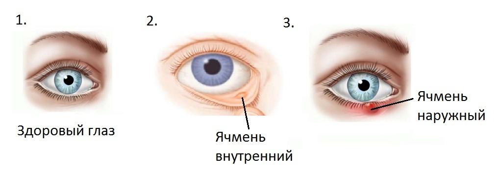 Здоровый глаз, внутренний и наружный ячмень