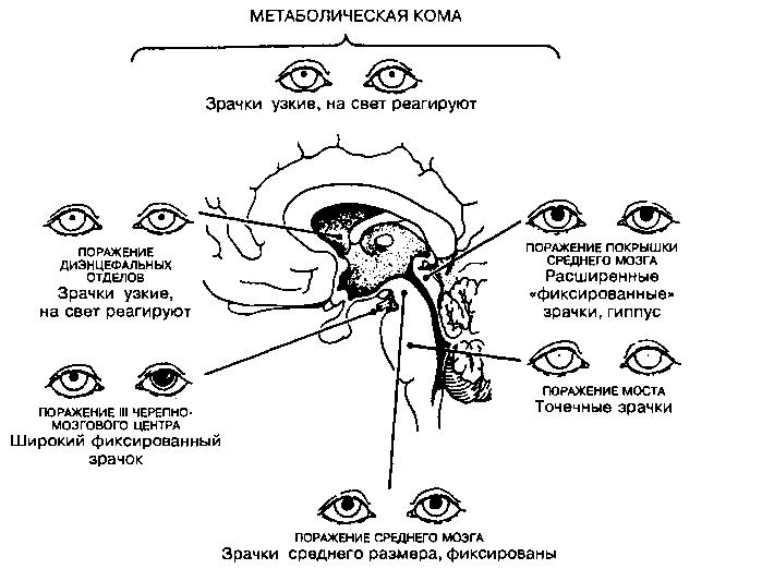 Зрачки коматозных больных