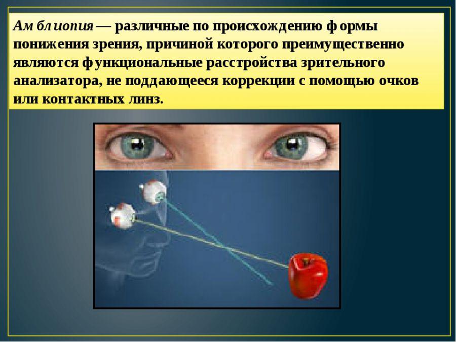 Изменение зрения при амблиопии