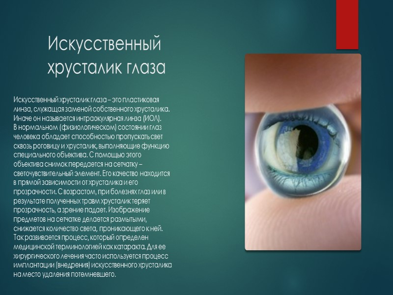 Искусственный хрусталик глаза по сути является линзой из акрила, силикона или гидрогеля