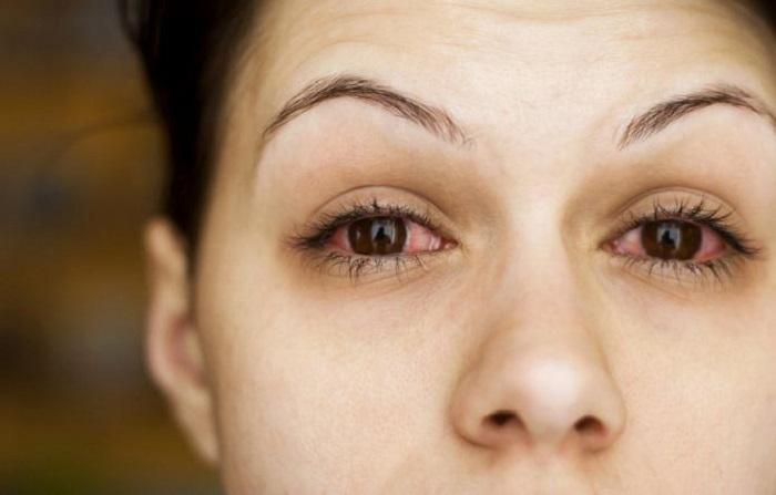 Как избежать кровоизлияния в глаз