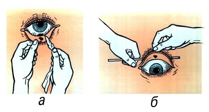 Как правильно доставать соринку из глаза