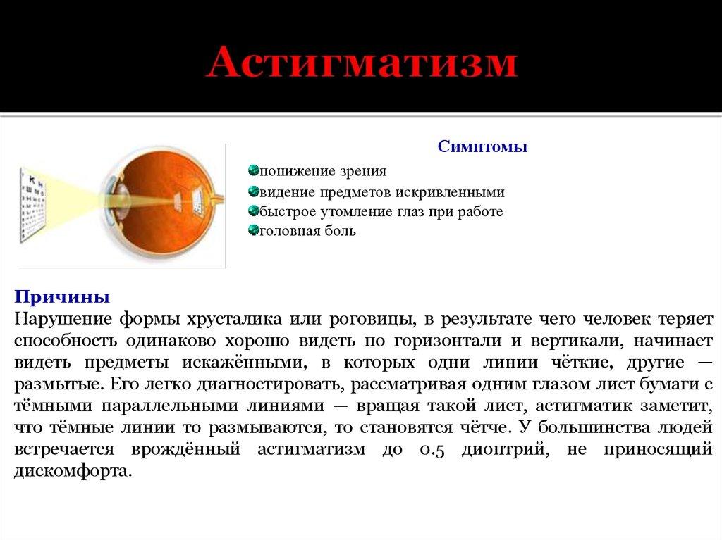 Как проявляется астигматизм