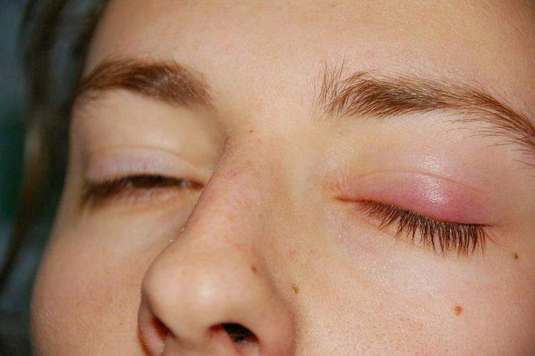 Как убрать опухоль с глаз