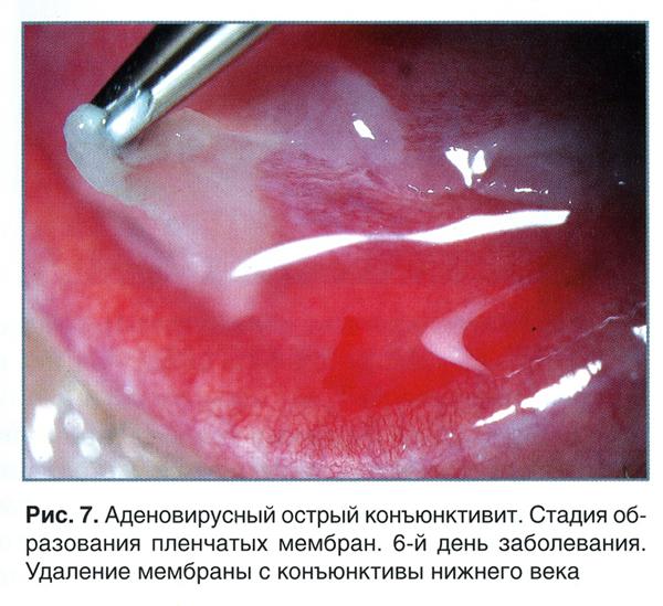 Конъюнктивит аденовирусный - фото