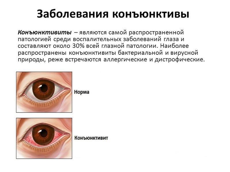 Конъюнктивиты