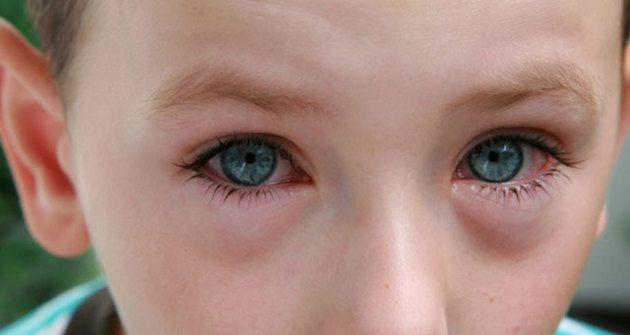 Конъюнктивит у ребенка - симптомы