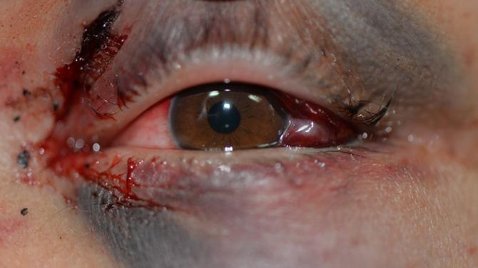 Кровоизлияние в веки и глаз после травмы