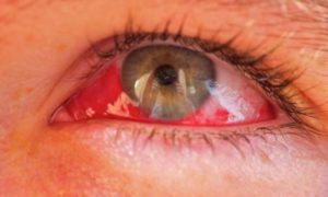 Гемофтальм – причины и лечение
