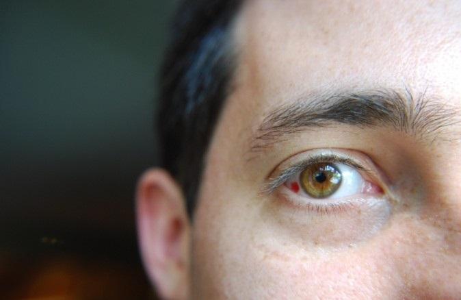 Кровоизлияние в глаз - причины и лечение