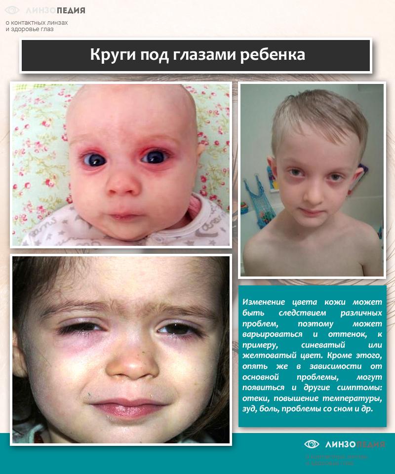 Круги под глазами ребенка