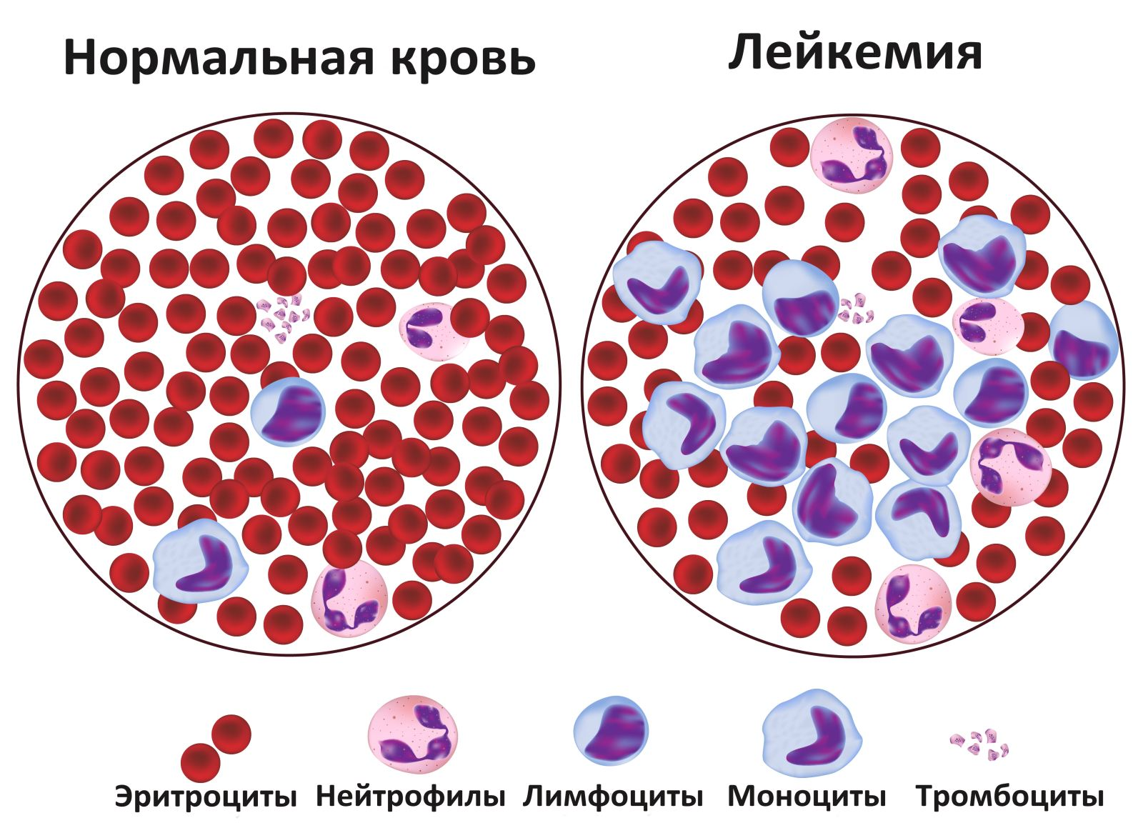 Лейкемия (лейкоз, белокровие, рак крови)