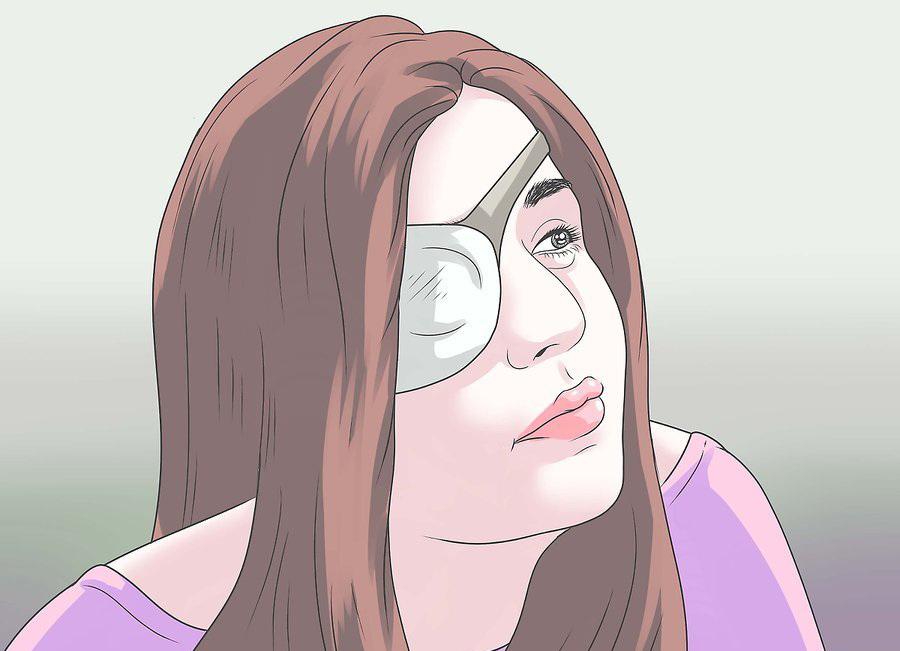 Рекомендации после операции катаракты Реабилитация после операции ВОССТАНОВЛЕНИЕ ЗРЕНИЯ