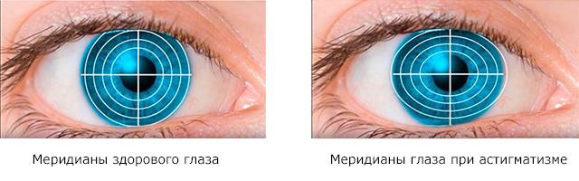 Меридианы здорового глаза и меридианы глаза с астигматизмом