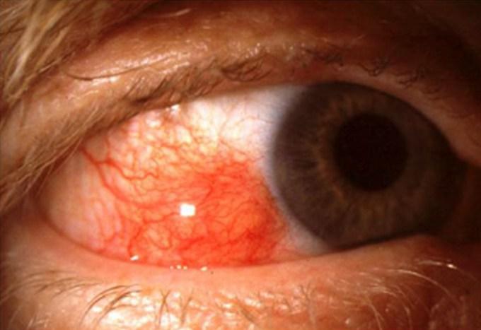 Мигрирующий эписклерит