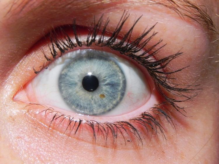 Обладатели голубых глаз в большей степени подвержены риску возникновения меланомы