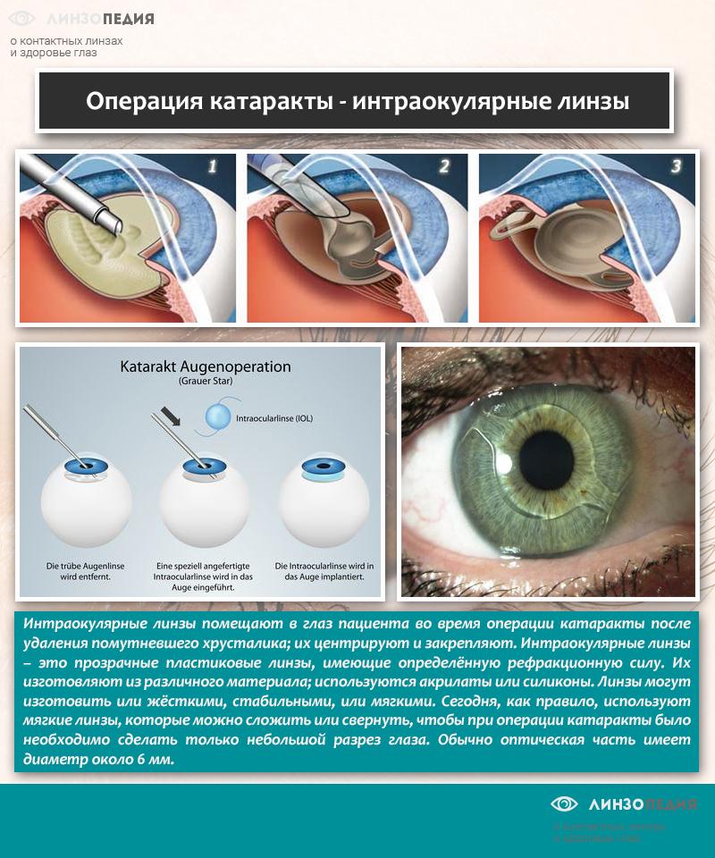 Операция катаракты - интраокулярные линзы