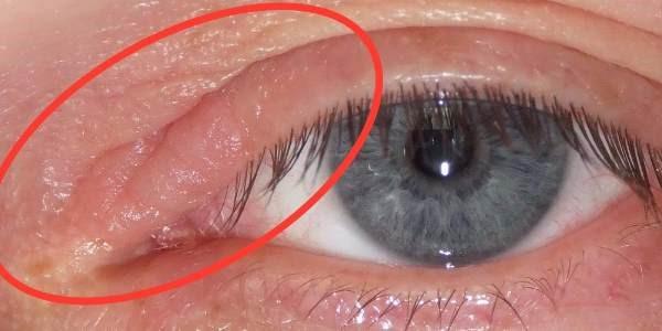 Опухло верхнее веко глаза