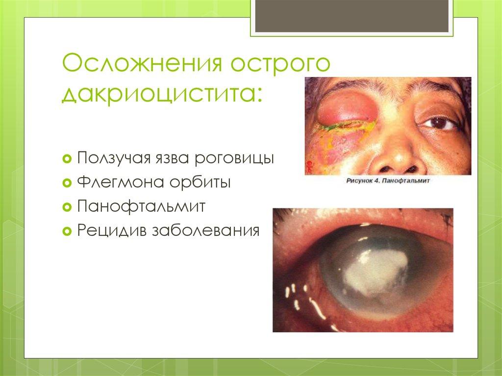 Осложнения острого дакриоцистита