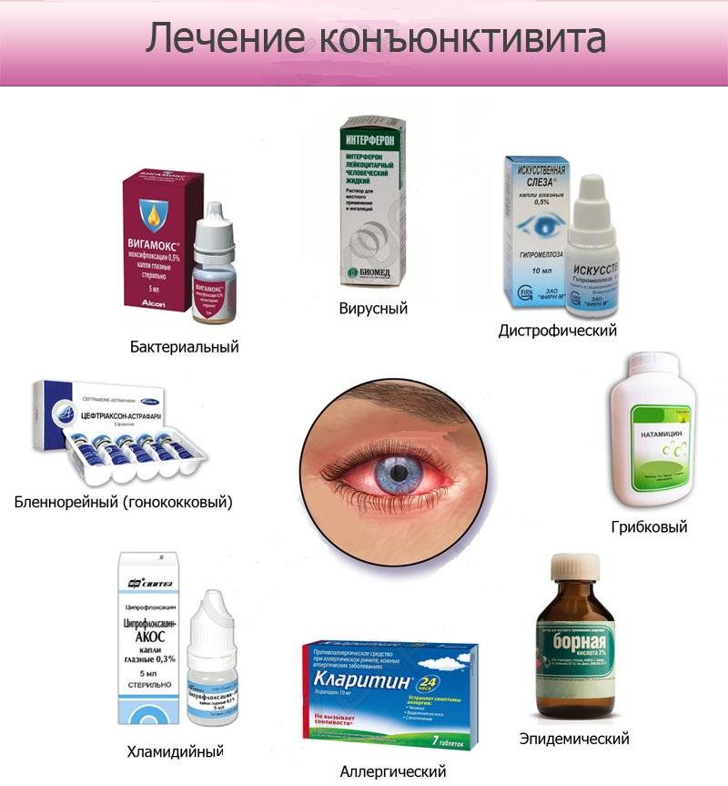 Основные виды глазных капель от конъюнктивита