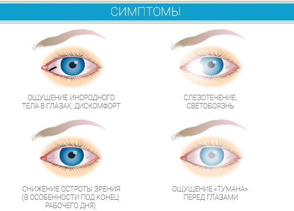 Основные симптомы сухого глаза