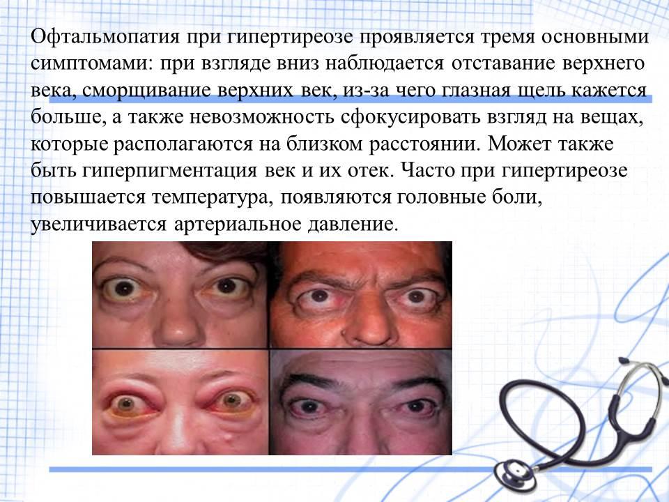 Офтальмопания при гипертериозе