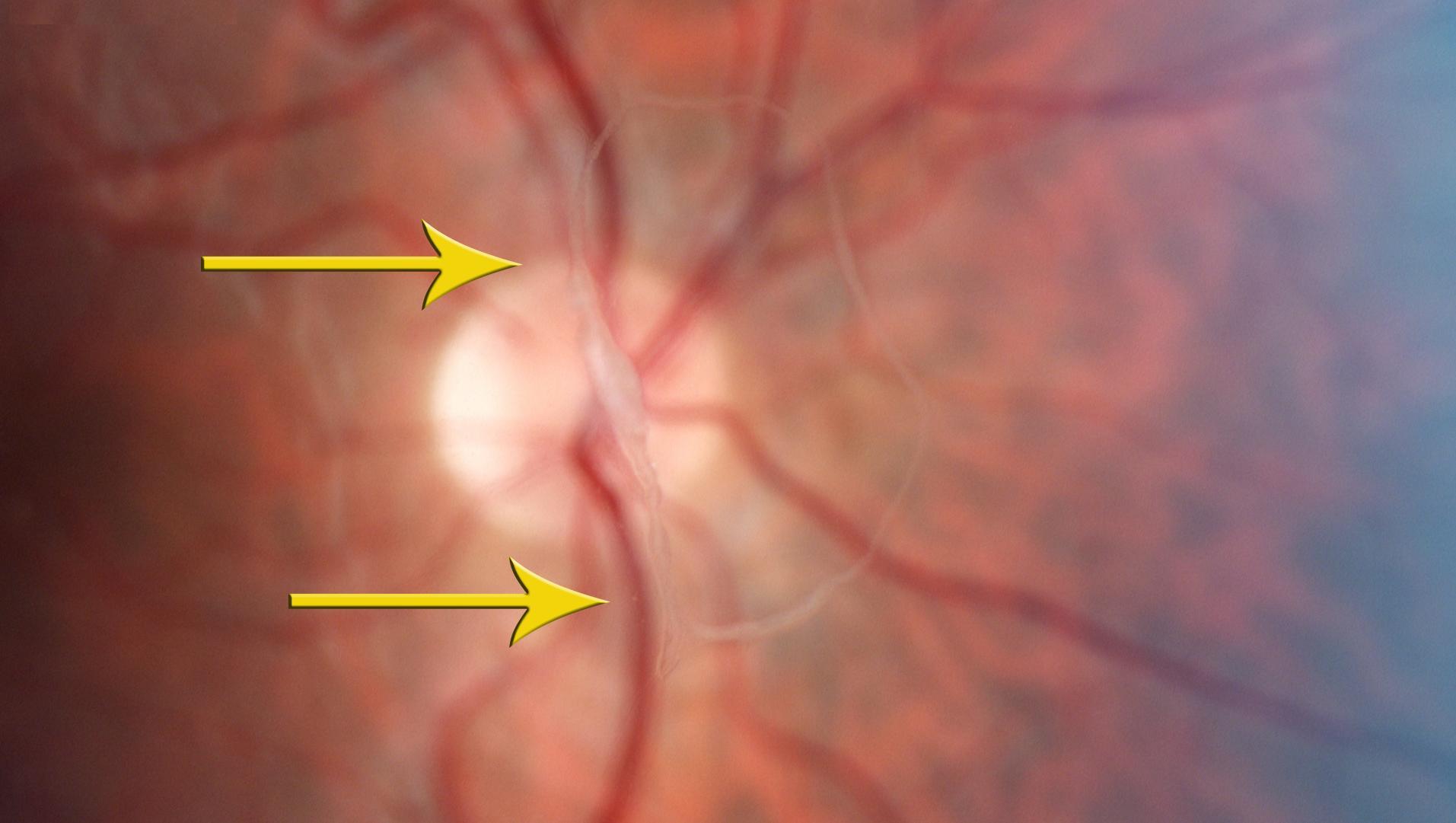 Перед глазами – мерцающие зигзаги