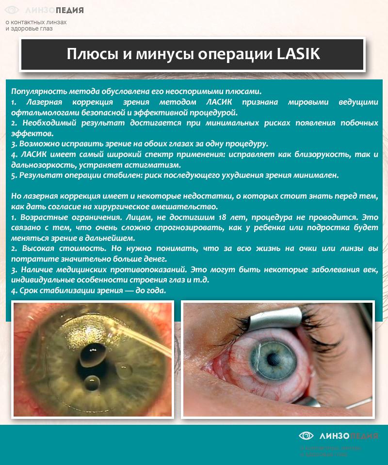 Плюсы и минусы операции типа LASIK