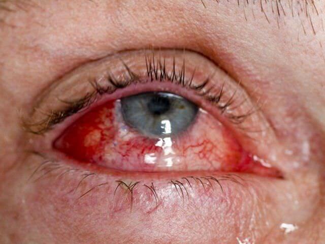 Повреждение глаза в результате проникающей травмы