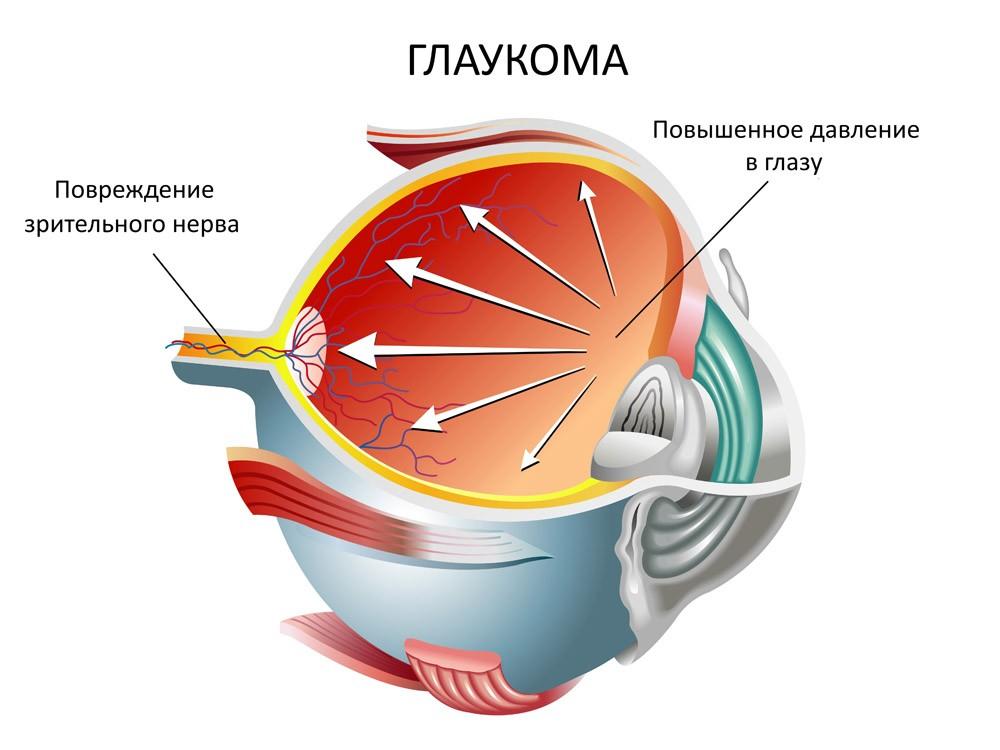 Повышенное давление глаза