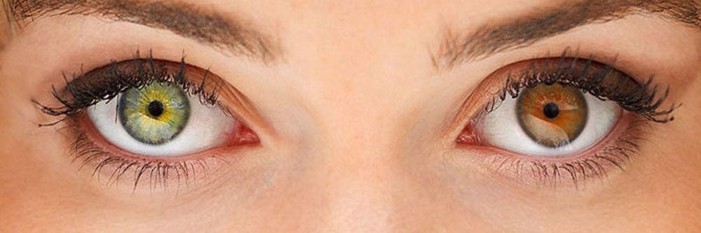 Полная гетерохромия глаз