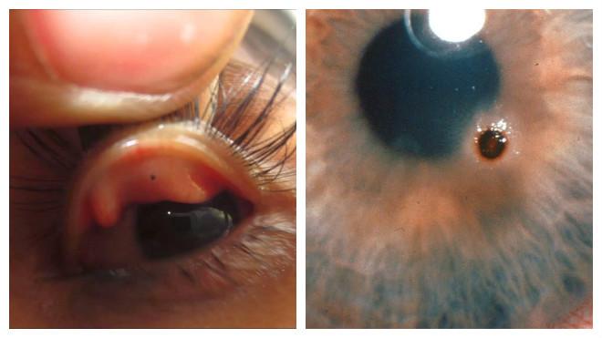 Попадание инородного тела в глаз, что бывает не так уж и редко, может застать человека и в быту, и на производстве