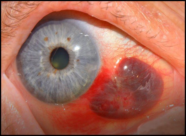 Последствия кровоизлияния в глаз