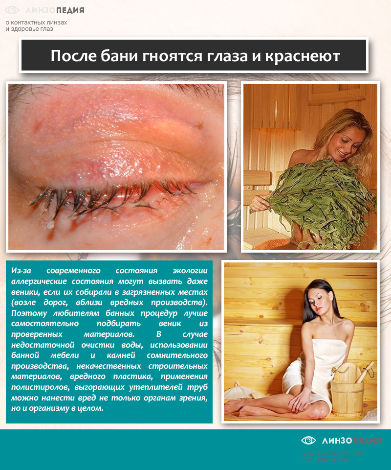 После бани гноятся глаза и краснеют