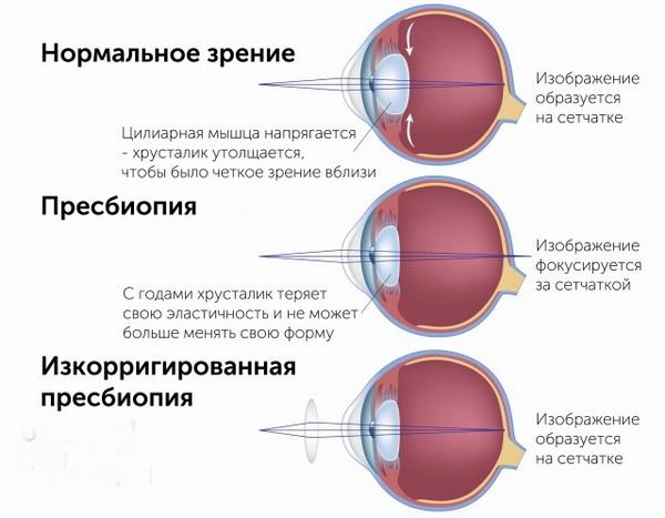 Пресбиопия глаз