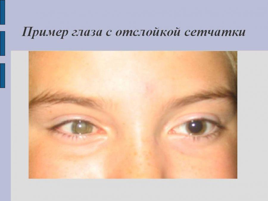 Пример внешнего вида глаз с отслоением сетчатки
