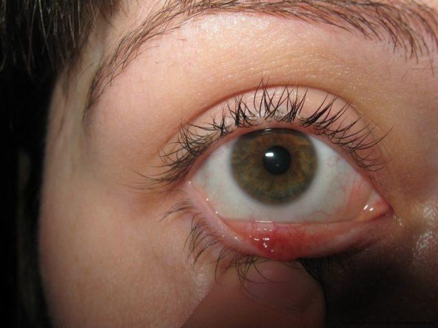 Причиной болезни обычно является ослабление иммунитета